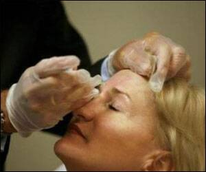 Botox injections can causedepression