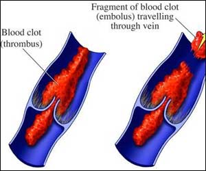 Blood Clots in Surface Veins Often Treated with Self-care ...