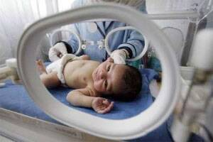 Extremely premature babies show higher autism risk