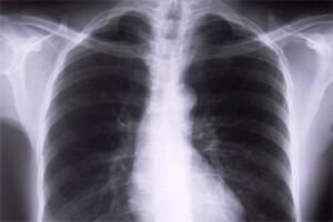 Coming soon: A treatment for cysticfibrosis?