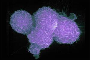Male prostate cancer has two viruses linked to human cancer