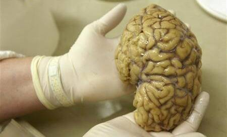 Scientists grow miniature human brains using stem cells