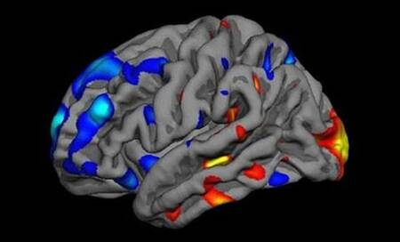New laser technology to improve accuracy of brain tumoursurgery