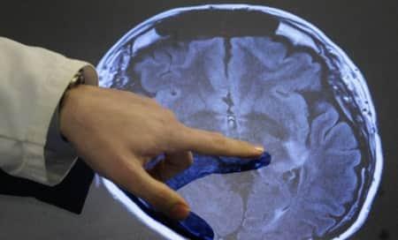Diabetes drug can reverse Alzheimer's
