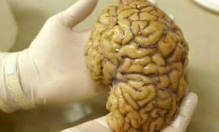 Brain-eating amoeba rattles nerves inLouisiana