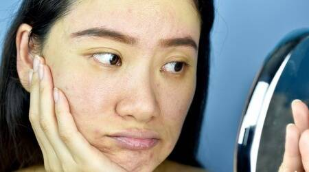 skin purge, skin purging, what is skin purging, difference between breakout and skin purging, skin reaction, skincare, indian express, lifestyle