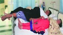 AIIMS surgeons 'innovate', remove tumour in world's tallestwoman