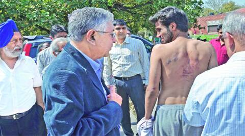 A student, who was let out on bail, shows his injuries to PU V-C Arun Kumar Grover on Friday. (Kshitij Mohan)
