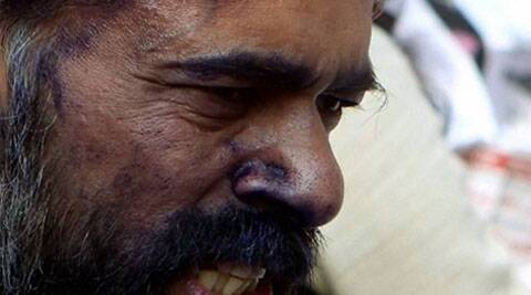 Ink attack on AAP leader Yogendra Yadav. (AP)