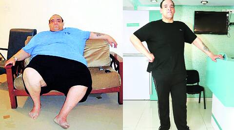 Zachary Smith before and after the surgery in Pune.