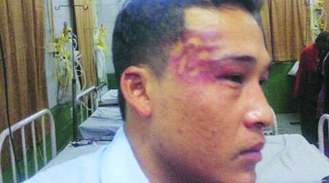 Mavio Woba, a student activist, was allegedly assaulted inside the Tis Hazari court complex. (Source: Express photo)