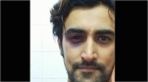 Kunal Kapoor posted a selfie on Twitter showing his bruises. Here's what happened.