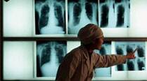 Strong link between indoor air pollution, TB in children: Study