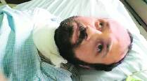 Iraq national in coma after weight losssurgery