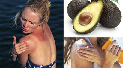 Five steps: How to treat sunburn