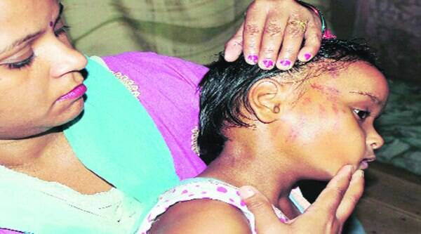 Mother shows the bruises on the face of Ananya in Ludhiana on Sunday. ( Source: Express photo by Gurmeet Singh )