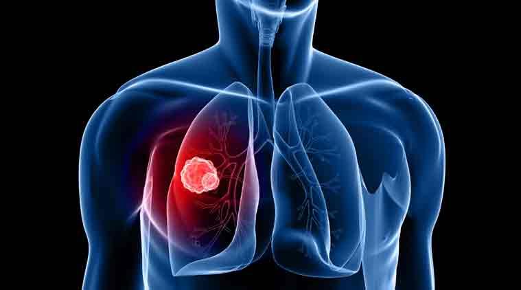 How lung cancer can be stopped from spreading