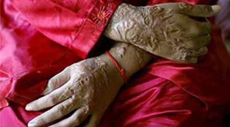 Denouncing acid attacks, Rajya Sabha urges stringent law to curbit