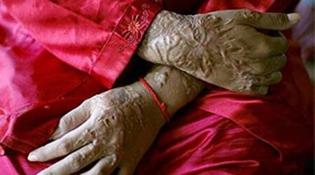 UP: Ghaziabad woman attacked with acid on way tooffice