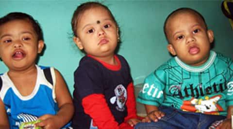 Ut To Start Newborn Pre Natal Screening For Down Syndrome
