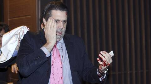 U.S. Ambassador to South Korea Mark Lippert leaves a lecture hall for a hospital in Seoul, South Korea, Thursday, March 5, 2015. U.S. Ambassador Mark Lippert was slashed on the face and wrist by a man wielding a blade and screaming that the rival Koreas should be unified, South Korean police said Thursday. (AP Photo/Yonhap, Kim Ju-Sung)