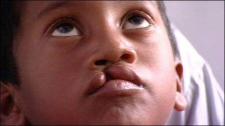Government plans campaign to wipe out cases of cleft lip instate