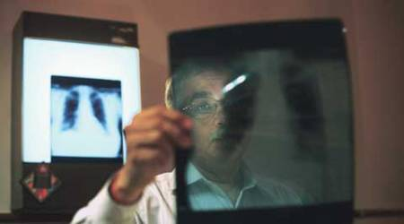 Leave Delhi: That's what doctors are prescribing to patients with serious respiratory ailments