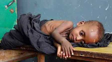Mumbai Paper Clip: Malnutrition higher among children in slums of MMR