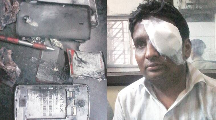 Surat man injured in mobile phone blast | Cities News, The Indian