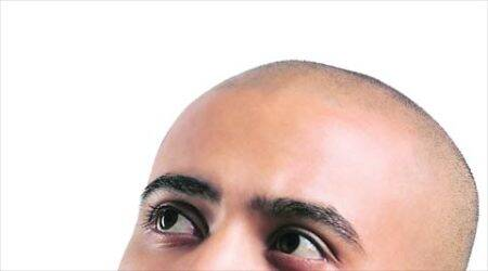 Why are men, in their early 30s, losing hair?