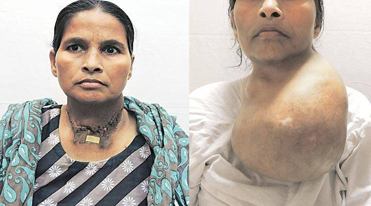 After 20 Years Woman Gets 3 Kg Thyroid Gland Removed At Aiims