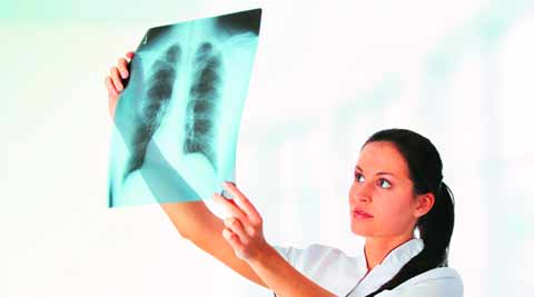 X-Rays, medical application, industrial application, harmful rays, shielding material, CSIR-AMPRI, India news, national news, nation news, Indian Express