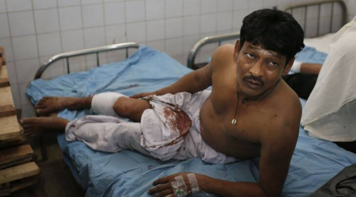 Motiur Rahman, 48, who sustained injuries after an explosion, is treated at a hospital in Dhaka, Bangladesh (AP photo)