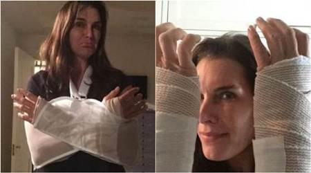 Brooke Shields recovering from double wrist surgery