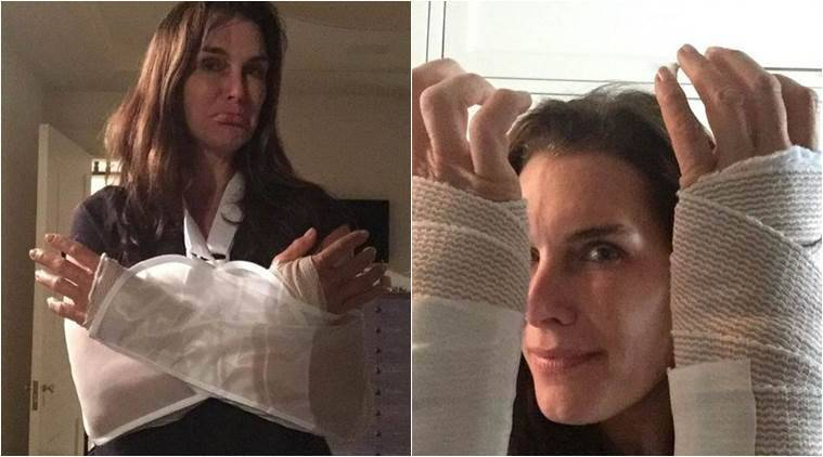 Brooke Shields, Brooke Shields Wrist Surgery, Brooke Shields Writs Injury, Brooke Shields Injured, Brooke Shields Double Wrist Surgery, Brooke Shields Wrist Bandages, Brooke Shields Arm Braces, Entertainment news