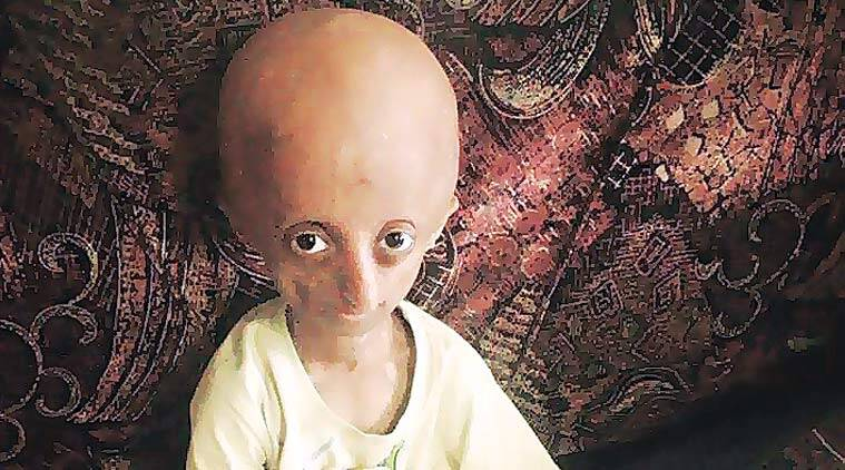 progeria, progeria kid, kid fighting progeria, nihal bitla, mumbai news
