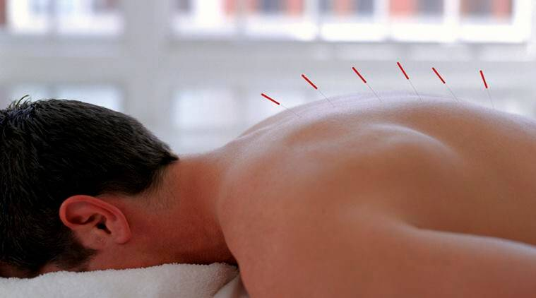 acupuncture, acupuncture therapy, acupuncture sessions, personalised acupuncture, fibromyalgia, pain, pain intensity, chronic pain, fatigue, disordered sleep patterns, depression, hydrotherapy