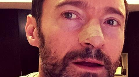 Hugh Jackman, Hugh Jackman Cancer, Hugh Jackman Skin Cancer, Hugh Jackman Skin Cancer on Nose, Hugh Jackman Cancer Treatment, Hugh Jackman Skin Cancer Treatment, Entertainment news