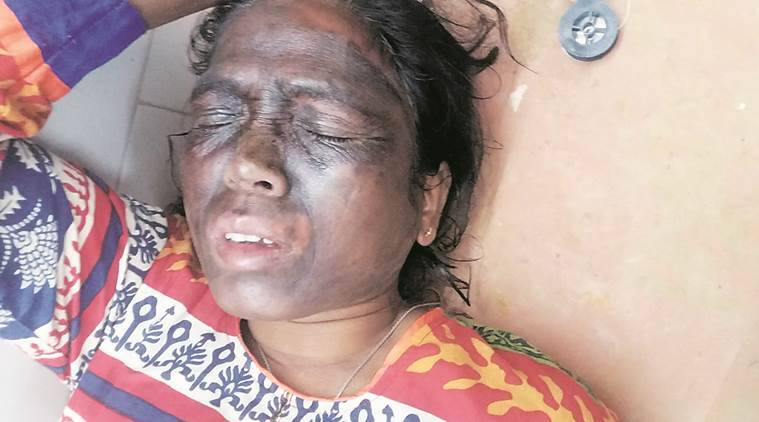 soni sori, soni sori attack, soni sori acid attcak, AAP soni sori, soni sori delhi, soni sori hospital,  chhattisgarh soni sori attack, soni sori chhattisgarh, india news, latest news