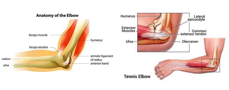Are You Suffering From A Tennis Elbow Heres How To Get Relief