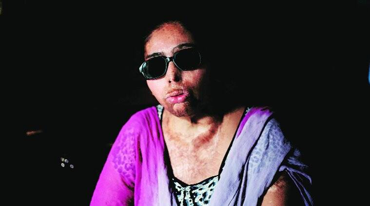 Renu is the first acid attack victim who is set to get a government job, after the Delhi HC directed the government to give her one. Praveen Khanna
