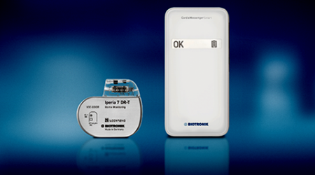 Smartphone-sized device to monitor your pacemaker athome