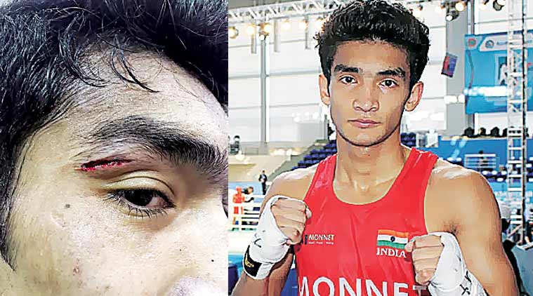 Thapa's cut (L), above his right eye was caused after Rao's elbow hit him.