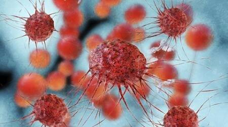 Scientists unlock how breast cancer cells spread