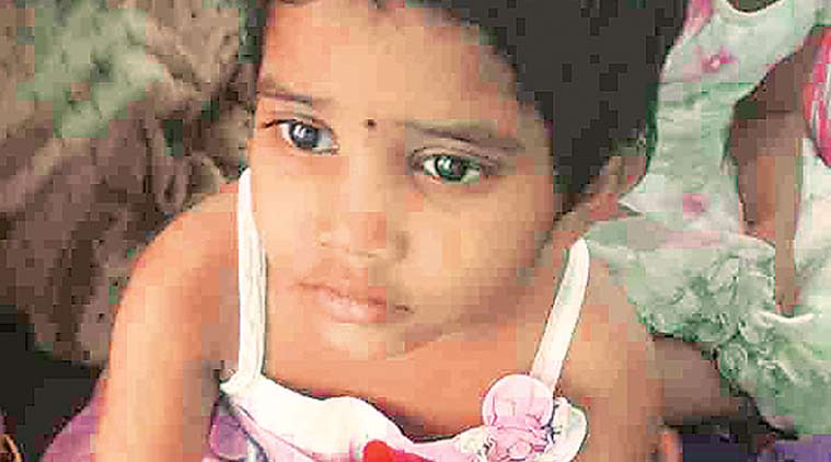 A child who suffered burn injuries. (Express Photo)
