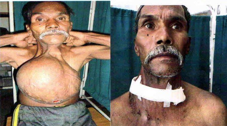 Manga Ram, 60 year old before and after the surgery. Express photo. 23.04.2016