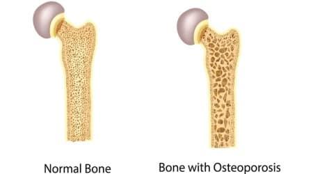 Osteoporosis, Osteoporosis treatment, PGI chandigarh, PGI doctors, chandigarh news, health news, indian express news
