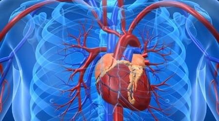 New device to allow bypass surgery without stopping theheart