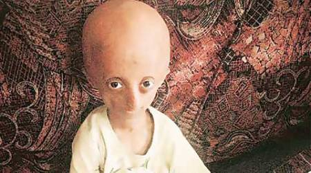 The Mumbai teen who became the face of progeria campaign in India
