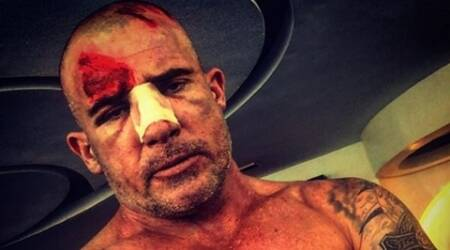 Prison Break star Dominic Purcell injured on set